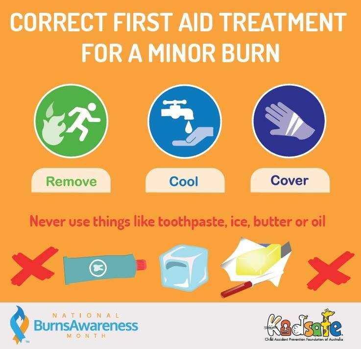 Correct First Aid Treatment for A minor Burn